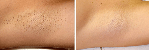 Laser Hair Removal Elgin and Algonquin IL